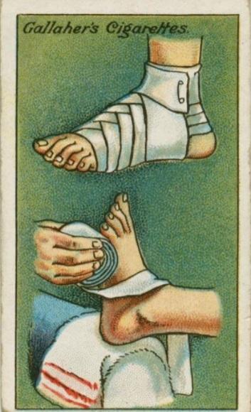 Faire un bon pansement en enroulant le bandage en spirale, en partant du talon aux doigts, puis faire un nœud vers la cheville