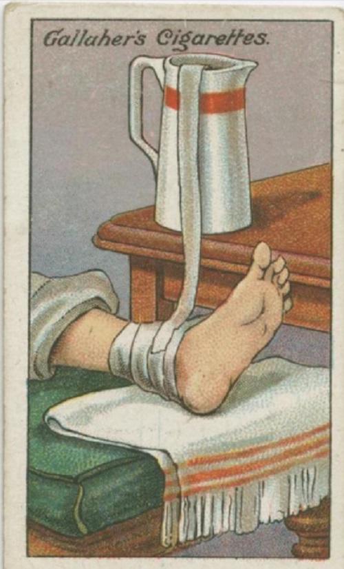 Mettre l'extrémité d'une bande dans une carafe remplie d'eau froide et disposer l'autre extrémité sur le pied afin d'atténuer la douleur d'une entorse