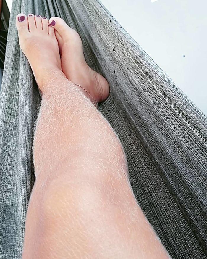 Le poil des jambes