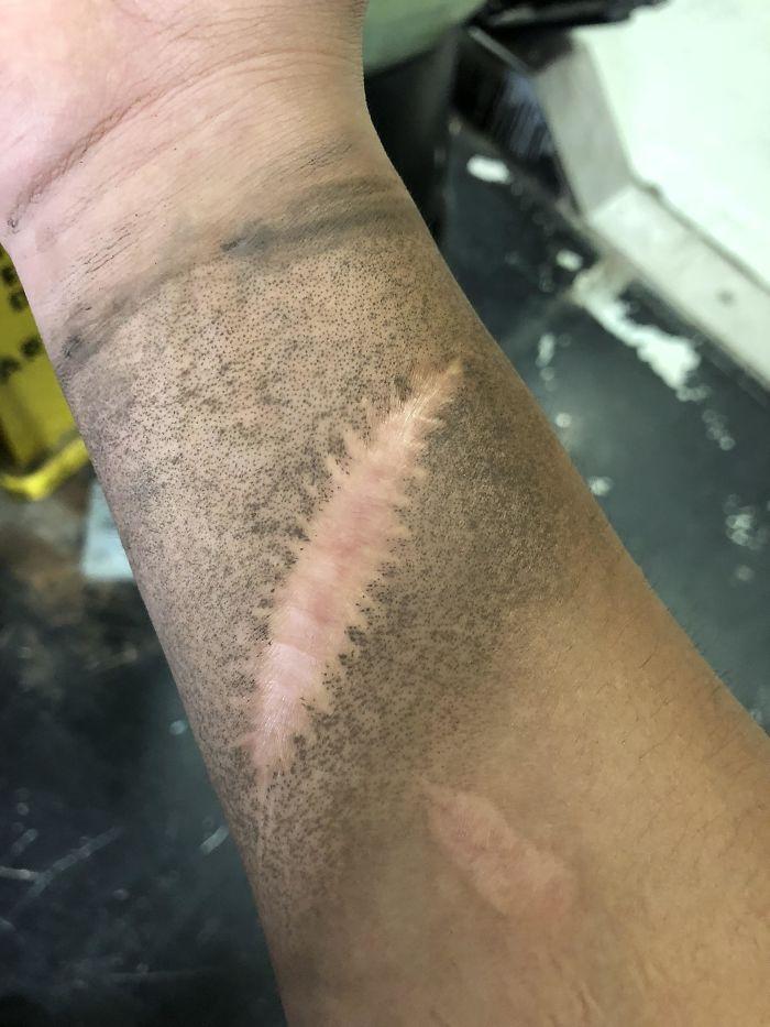 Ma cicatrice ne devient pas sale quand je suis au travail